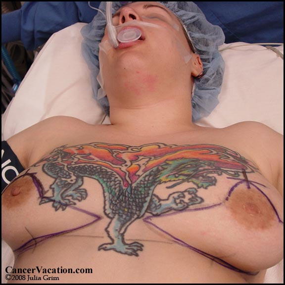 Incision guidelines pre-mastectomy...
